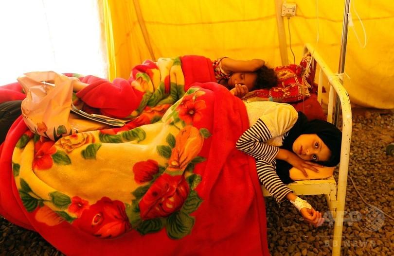 イエメンのコレラ流行、感染疑い19万件超 8月末には30万件超も