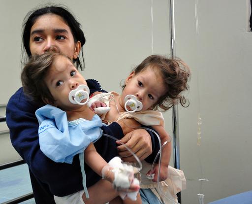 パナマ初、結合双生児の分離手術