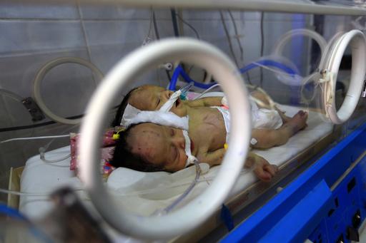 イエメンの結合双生児が死亡、手術のための出国かなわず
