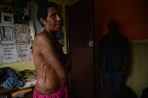 環境の変化を黒魔術のせいに、多発する現代の魔女狩り パプアニューギニア