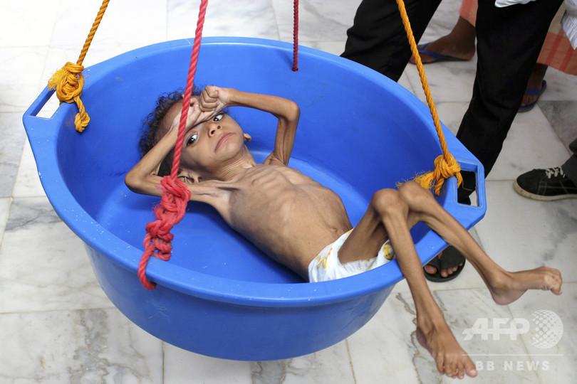 内戦続くイエメン、子ども500万人以上が飢餓に直面