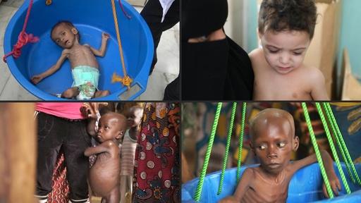 動画:5歳未満の子ども、3人に1人が栄養不良か過体重 ユニセフ