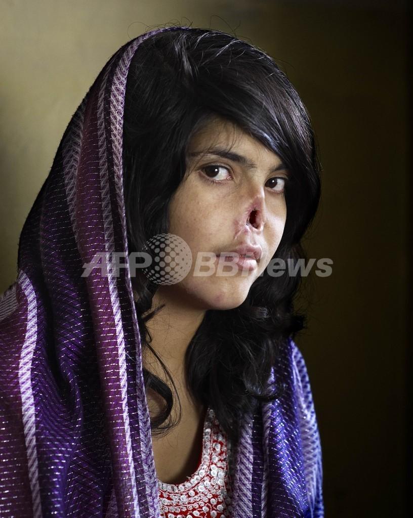 世界報道写真大賞、「耳と鼻をそぎ落とされたアフガン女性」に