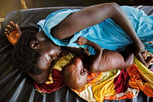 南スーダン、一部地域で飢饉発生と発表 食料不足が深刻化