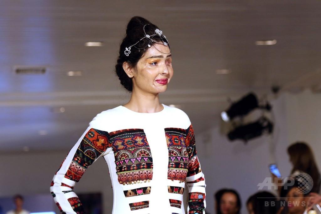 酸攻撃の被害女性、ファッションウイークのランウェイに 米NY