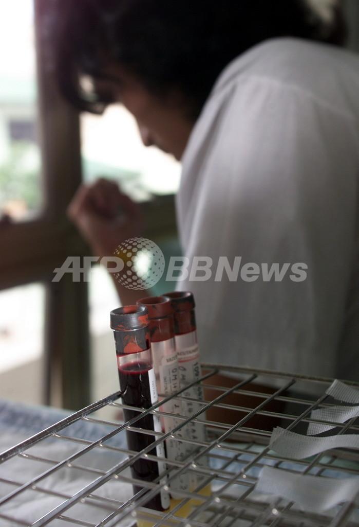 エイズワクチン臨床試験打ち切り、感染率高める可能性発覚で