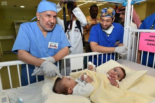 リビア出身の結合双生児、サウジで分離手術 無事成功