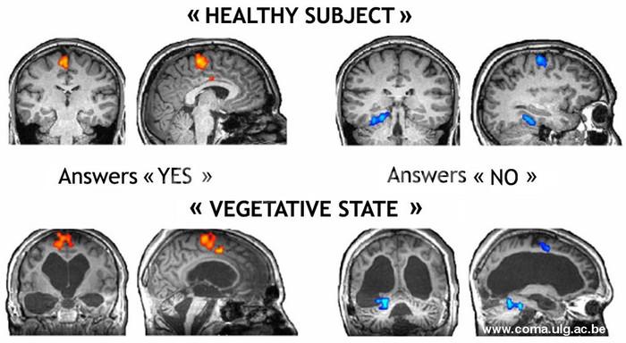 植物状態の男性とのコミュニケーションに成功、脳の動きで「イエス」「ノー」伝達