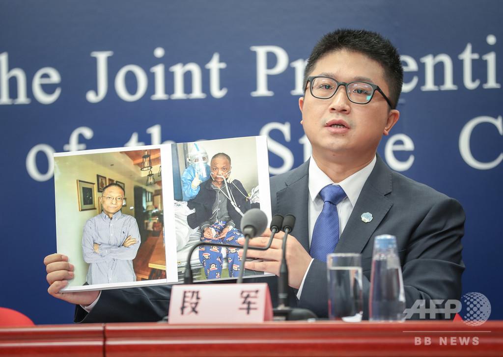 新型コロナ治療の薬で皮膚が黒くなった医師、状態改善 中国・武漢