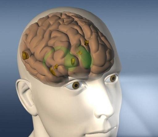 脳の動きで見ているものを当てる、脳解析で劇的な進歩 米研究報告