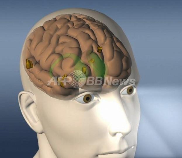 ゲイの脳は異性愛女性の脳に類似する、スウェーデン研究所
