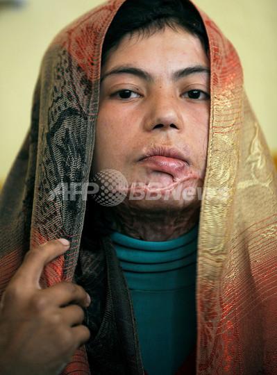 社会的抑圧を苦に自殺図るアフガニスタン女性たち