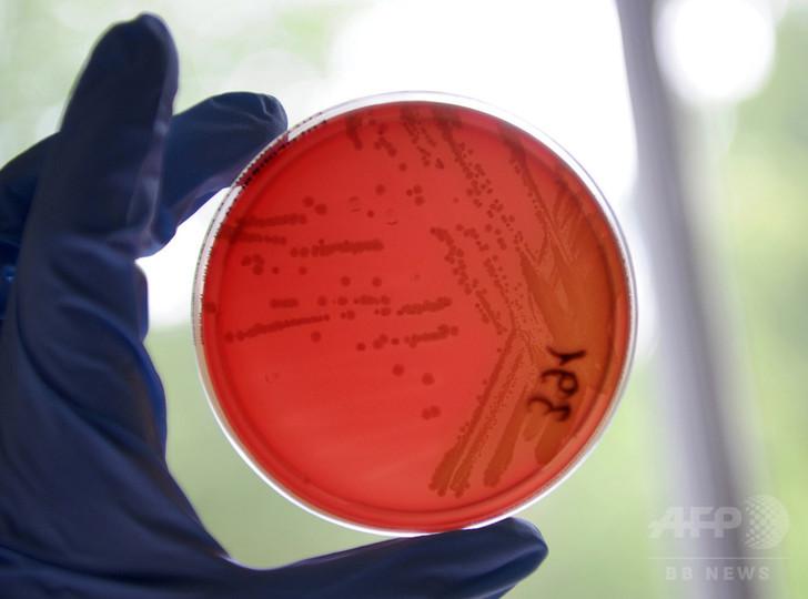 化学物質毒性をヒト細胞で予測、動物実験削減に期待 米研究