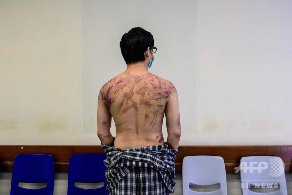 白服集団による香港デモ隊襲撃、巻き込まれた男性が恐怖語る