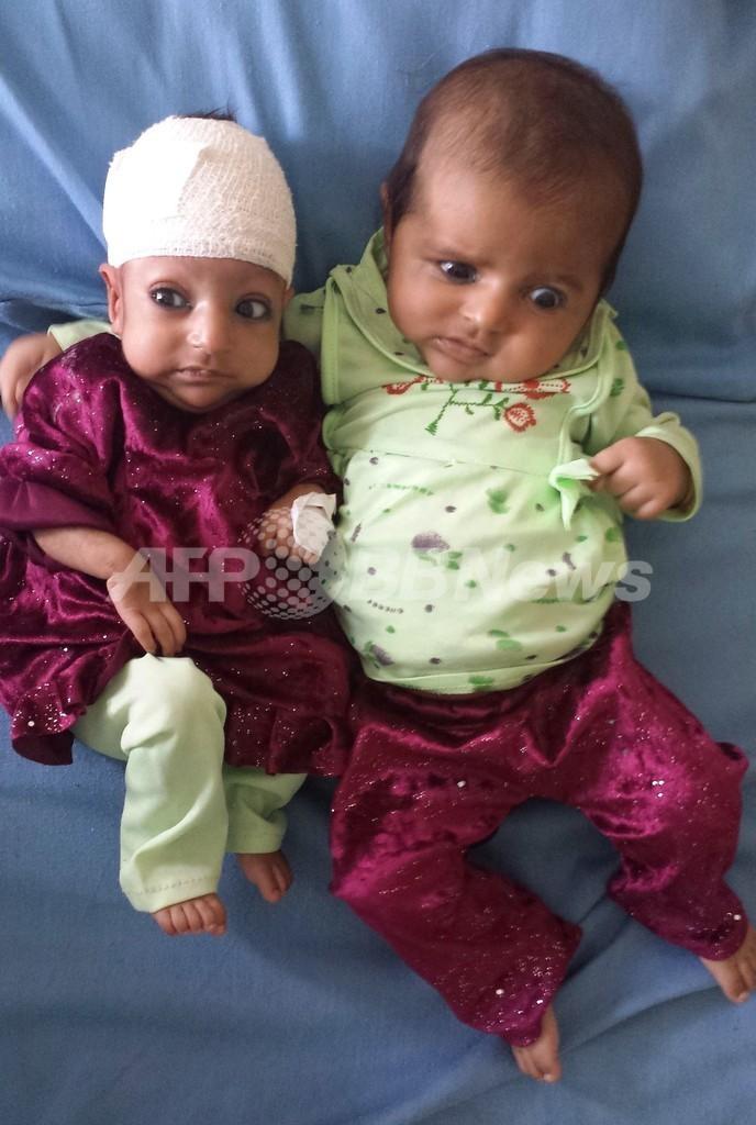 頭を2つ持つ赤ちゃんの頭部分離手術に成功 アフガニスタン