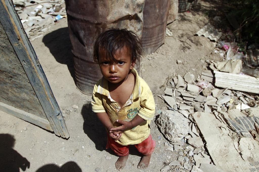 イエメンの民間人犠牲者、原因の大半はサウジ主導の連合軍 国連