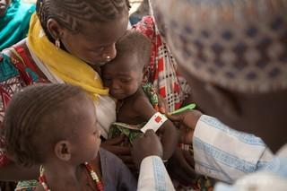 アフリカ中部、致死的栄養失調の子どもが50万人 国連が警鐘