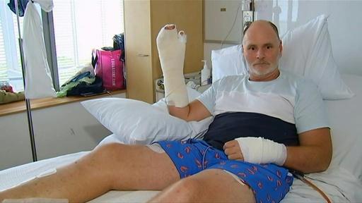 動画:豪男性、ワニの目に指突っ込んで危機脱出 病室で会見