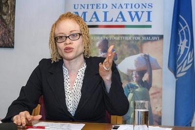 マラウイのアルビノ「組織的に滅ぼされる」危機に、国連専門家