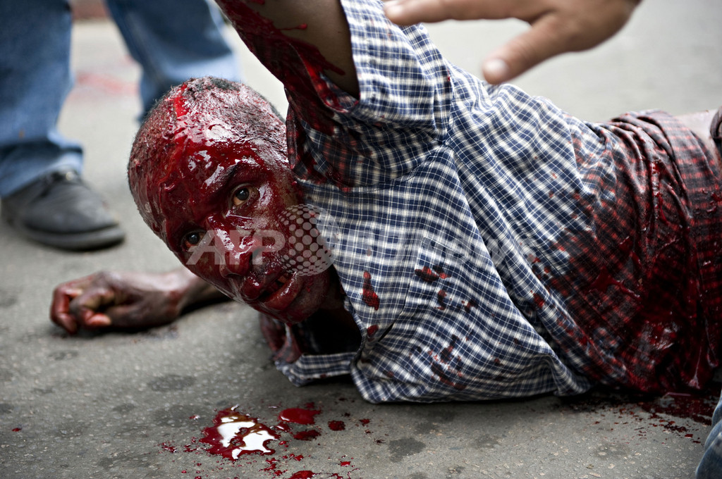 マダガスカルでデモ隊に警官隊が発砲、5人以上死亡