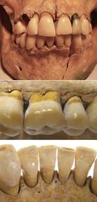 英国人の歯周炎、ローマ時代より現代の方が多い 研究
