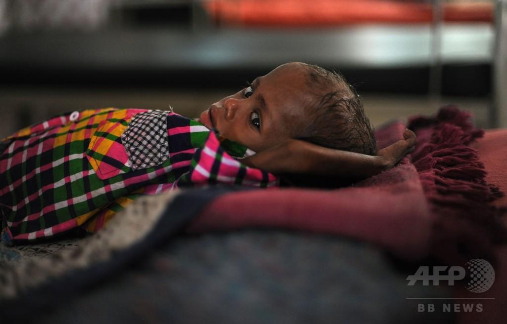 発育不全の子ども、インドで世界最多 屋外排せつと不衛生で