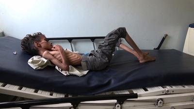 動画:内戦下のイエメン、最大8万5000人の子どもが餓死・病死