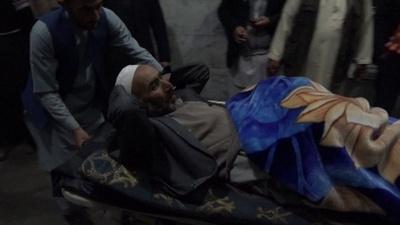 動画:アフガン首都の自爆攻撃で50人死亡 ムハンマド生誕の集会が標的に