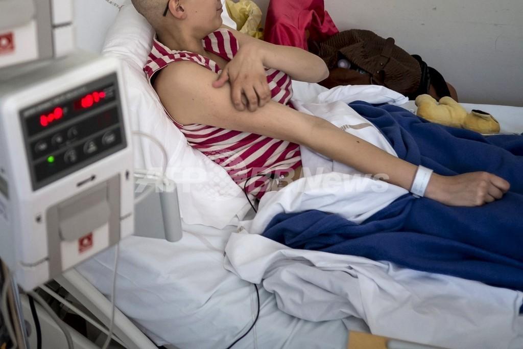 小児がん克服者の大半、成長後に慢性病を発症 調査結果