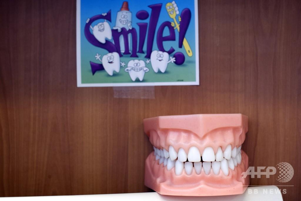 「入れ歯は手術前に外すこと」 6回緊急搬送された男性の症例報告