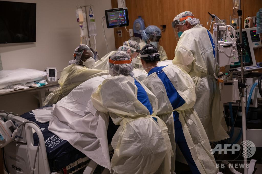 新型コロナの危険な合併症か、血栓の報告相次ぐ 脚切断患者も