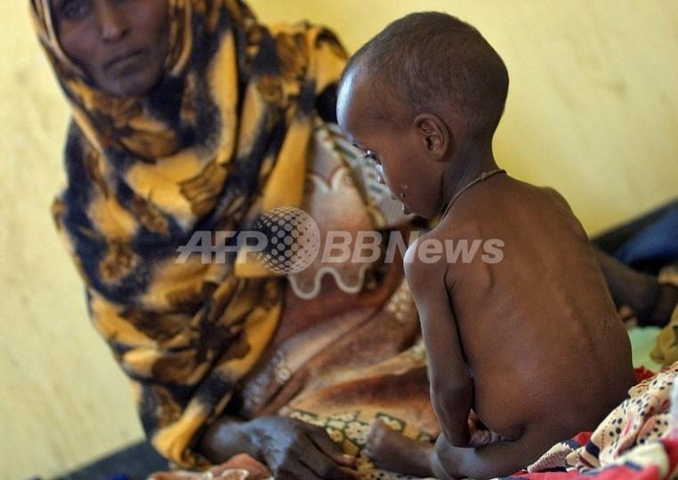 食料価格の高騰が貧困国の子どもを直撃、国境なき医師団