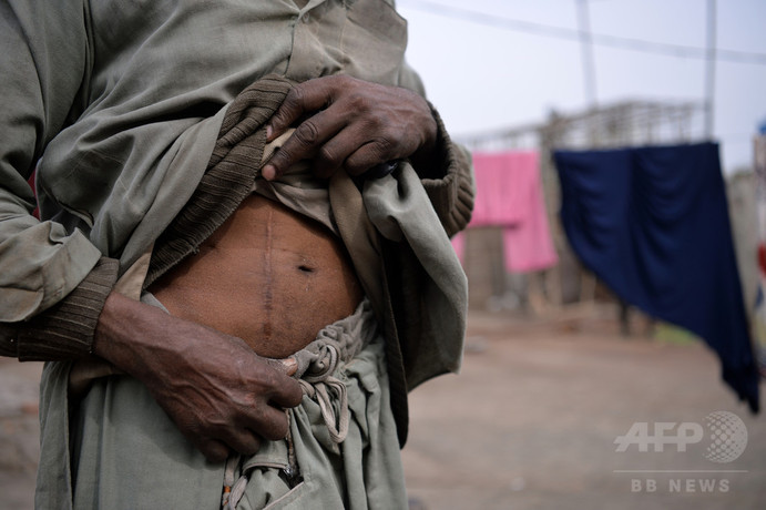 富と貧困が支える腎臓の違法取引 パキスタン