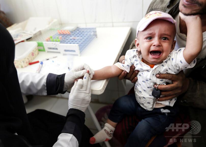 内戦で荒廃のイエメン、飢えて物乞いする子どもたち 写真15枚 国際 ...