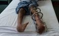 インドでポリオ根絶へ、世界的努力に大きな前進