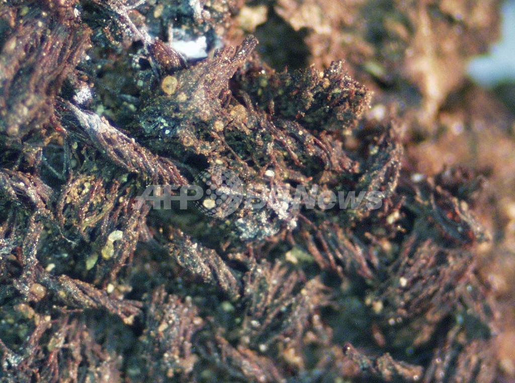 世界最古のハンセン病患者は1世紀の男性、エルサレムで発見のミイラ