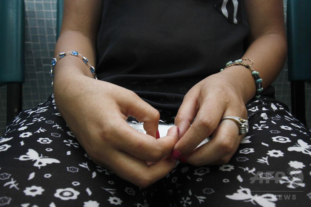ジカウイルスと小頭症、関連を示す証拠が増加 WHO