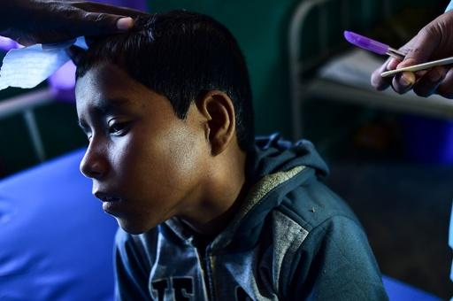 ジフテリア、ロヒンギャ難民キャンプで猛威 世界的にはまれな疾患に