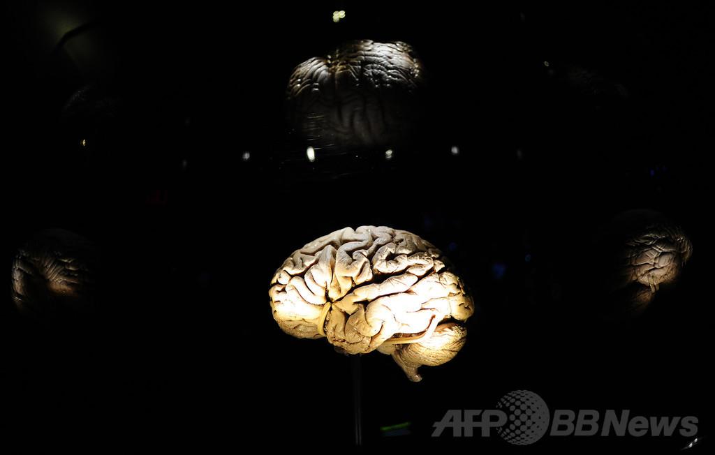 脳への電気刺激で明晰夢に誘導する実験に成功、独研究