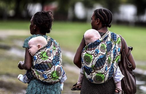 アルビノ女性を殺害し切断、呪術医2人逮捕 タンザニア