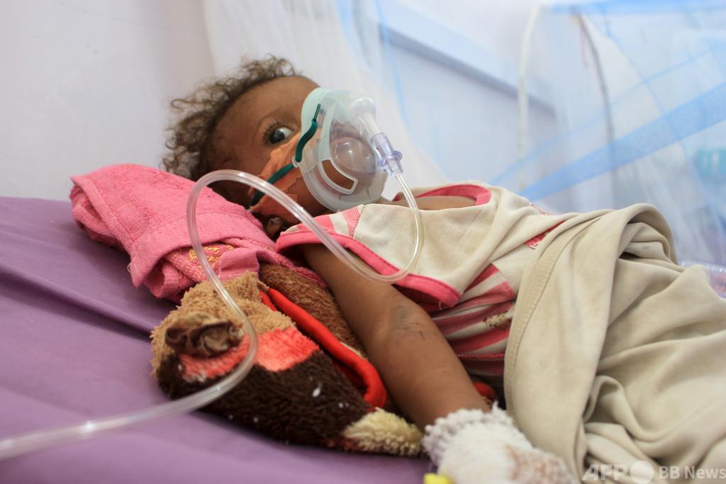 内戦のイエメン、過去数十年で世界最悪の飢餓の恐れ 国連総長