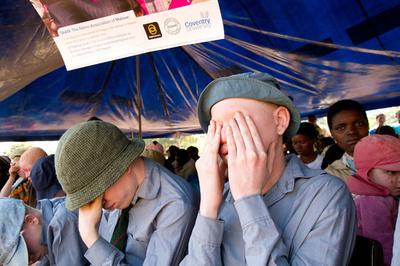 マラウイのアルビノ襲撃、「前代未聞」の勢いで増加