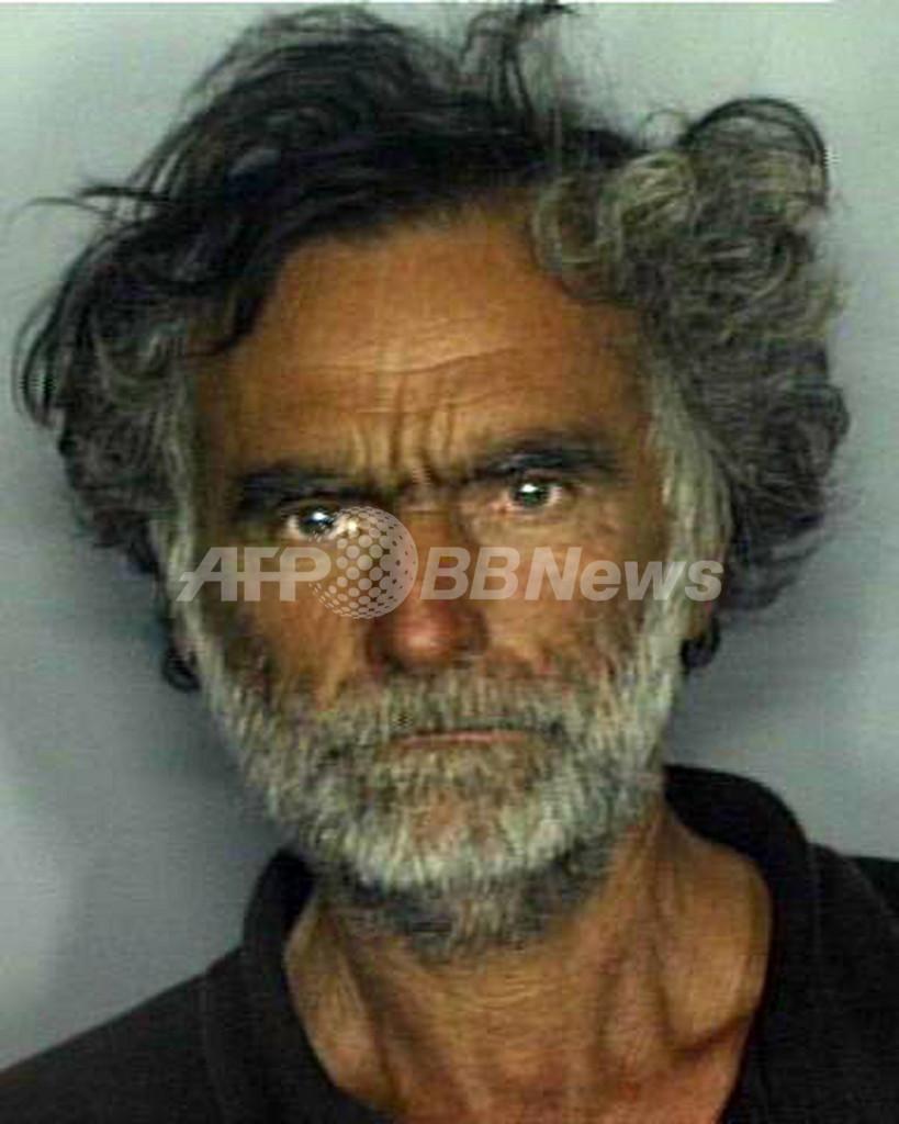 米マイアミで顔を食いちぎられた男性、順調に回復も失明の恐れ