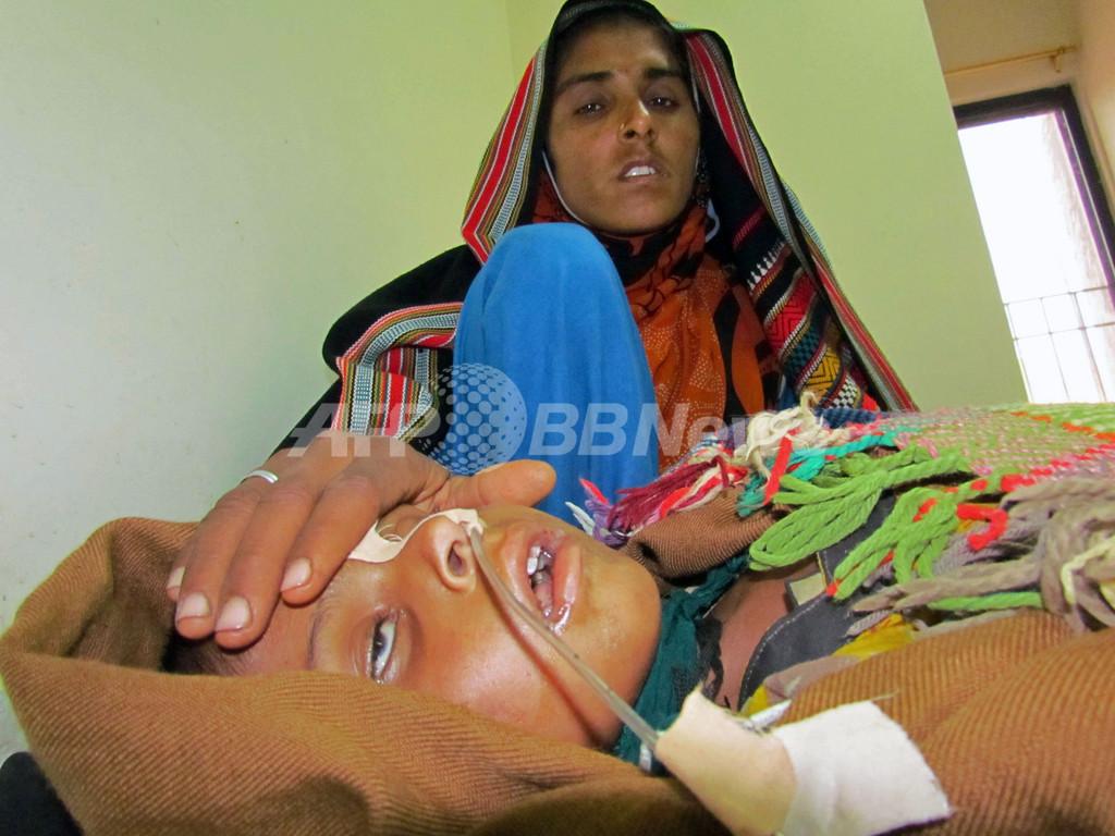 はしか流行、19日間で子ども103人死亡 パキスタン