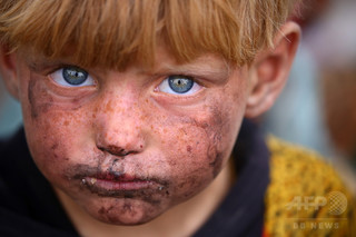 米主導の有志連合によるシリア空爆、1か月の民間人犠牲者数が過去最多に