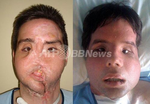 世界初の顔面完全移植男性、TV記...