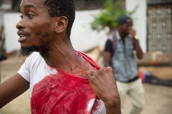 コンゴ衝突、警察発表で32人死亡 野党は「100人超」と主張