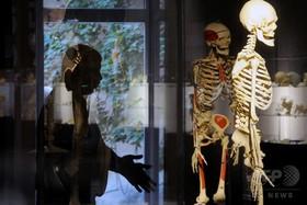 3Dプリントの人工骨、周囲の骨再生を促進 米研究