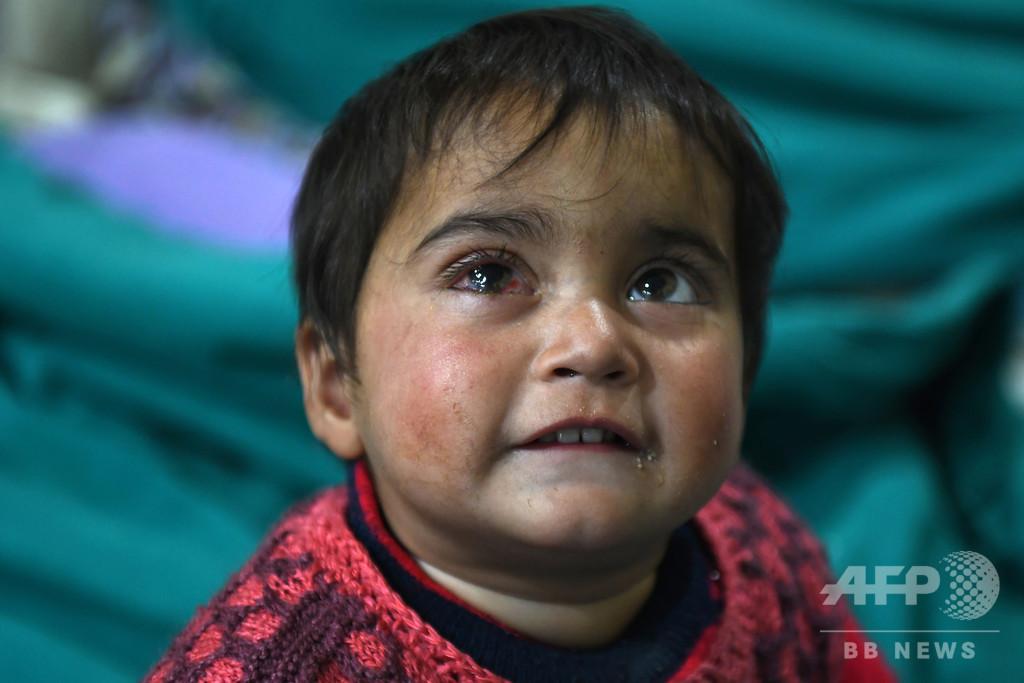 1歳の子の目に金属片… 衝突続くカシミール、物議醸す散弾銃